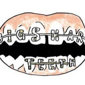 Big.Sharp.Teeth